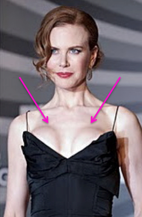 Nicole Kidman, breast implants, breast augmentation, celebrities, entertainment, beauty, cosmetic surgery