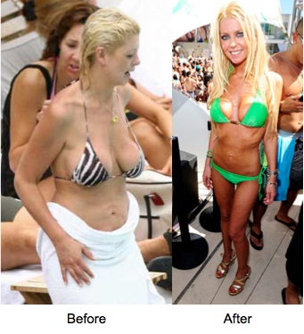 Tara Reid Before and After breast implants