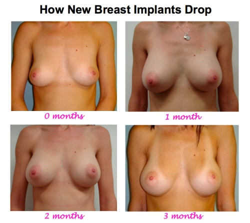 How new breast implants drop, breast implants too high, high riding breast implants, Plastic surgeon new york city, breast enlargement new york city, dr nicholas vendemia, mas, manhattan aesthetic surgery