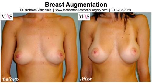 Before and After Breast Augmentation by New York Plastic Surgeon Dr Nicholas Vendemia of MAS | 917-703-7069