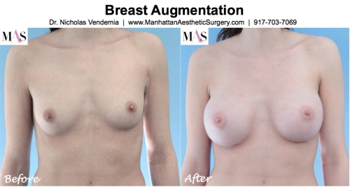 Breast Enlargement by New York Plastic Surgeon Dr Nicholas Vendemia of MAS | 917-703-7069, Breast Augmentation, Breast Implants, Plastic Surgery