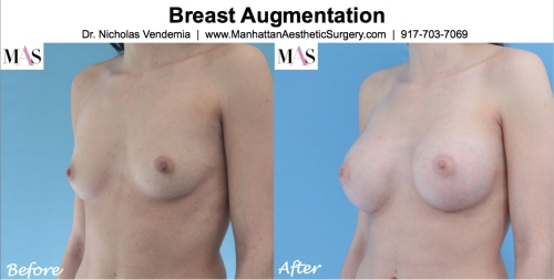 Before and After Breast Implants by NYC Plastic Surgeon Dr Nicholas Vendemia of MAS | 917-703-7069