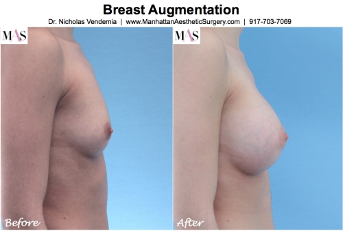 Before and After Breast Enlargement by New York Plastic Surgeon Dr Nicholas Vendemia of MAS | 917-703-7069