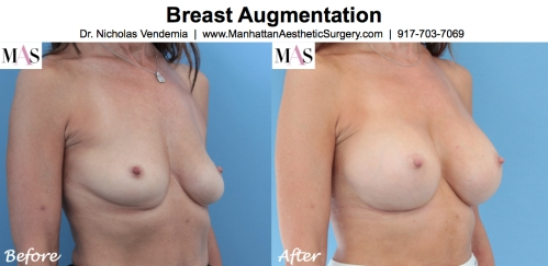 Before and After Breast Augmentation by NYC Plastic Surgeon Dr Nicholas Vendemia of MAS | 917-703-7069