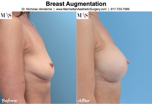 Before and After Breast Enlargement by New York City Plastic Surgeon Dr Nicholas Vendemia of MAS | 917-703-7069