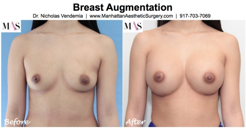 breast enlargement new york by dr nicholas vendemia plastic surgeon at MAS Manhattan Aesthetic Surgery