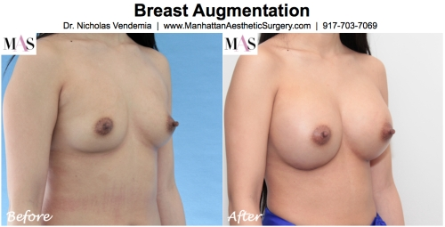 breast augmentation new york by dr nicholas vendemia plastic surgeon at MAS Manhattan Aesthetic Surgery