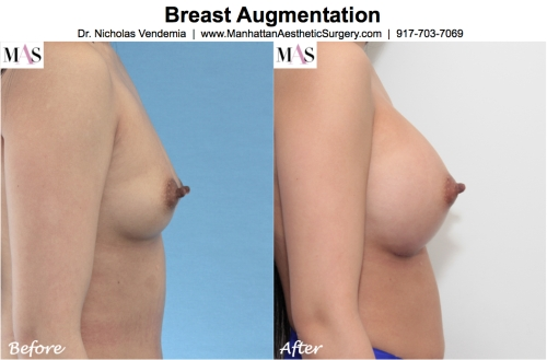 breast enlargement nyc by dr nicholas vendemia plastic surgeon at MAS Manhattan Aesthetic Surgery
