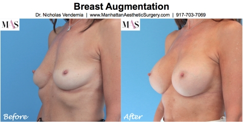 Breast Augmentation Breast Augmentation by New York Plastic Surgeon Dr Nicholas Vendemia of MAS | 917-703-7069