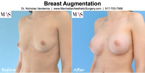Breast Augmentation Breast Enlargement by New York Plastic Surgeon Dr Nicholas Vendemia of MAS | Manhattan Aesthetic Surgery | Plastic Surgery
