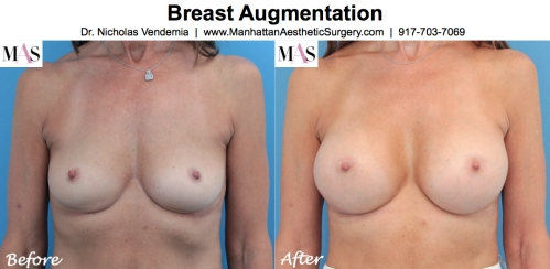 Breast Augmentation by New York Plastic Surgeon Dr Nicholas Vendemia of MAS Manhattan Aesthetic Surgery, breast implants, breast enlargement, plastic surgery, dr plastic surgeon, how to choose the right size breast implants