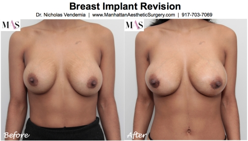 PIP breast implant removal by plastic surgery new york dr nicholas vendemia of mas manhattan aesthetic surgery