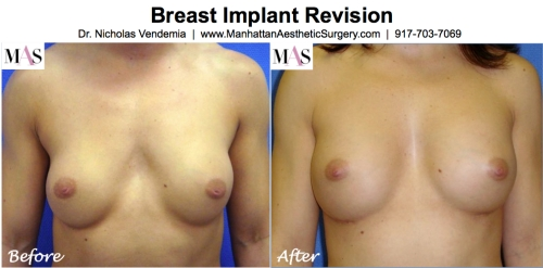 Breast implant revision by Plastic Surgery New York Dr Nicholas Vendemia of MAS Manhattan Plastic Surtgery