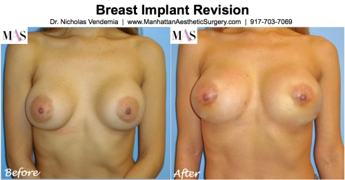Breast implant revision by Plastic Surgeon New York Dr Nicholas Vendemia of MAS Manhattan Plastic Surtgery