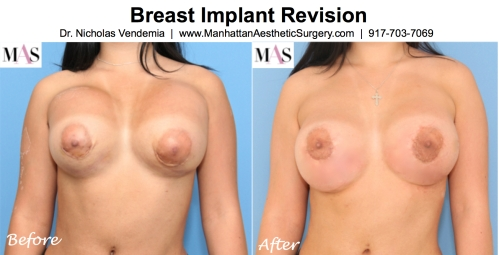 breast implant revision, breast augmentation revision, implants sitting too high