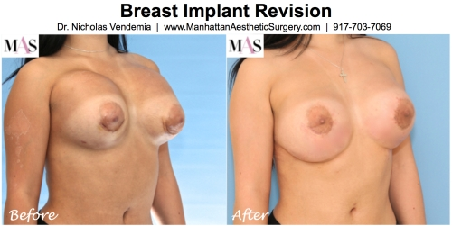 breast implants too high on chest, breast augmentation revision surgery