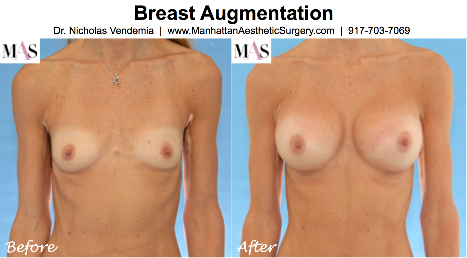 Breast augmentation size a