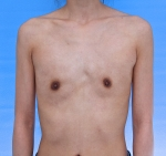 significant breast asymmetry